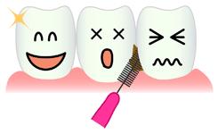 歯間清掃をジェットフロスでやってみた!